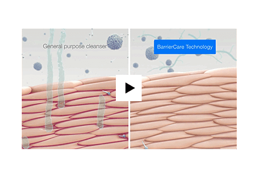 Cleansing and Preserving Lipid Barrier Using BarrierCare Technology